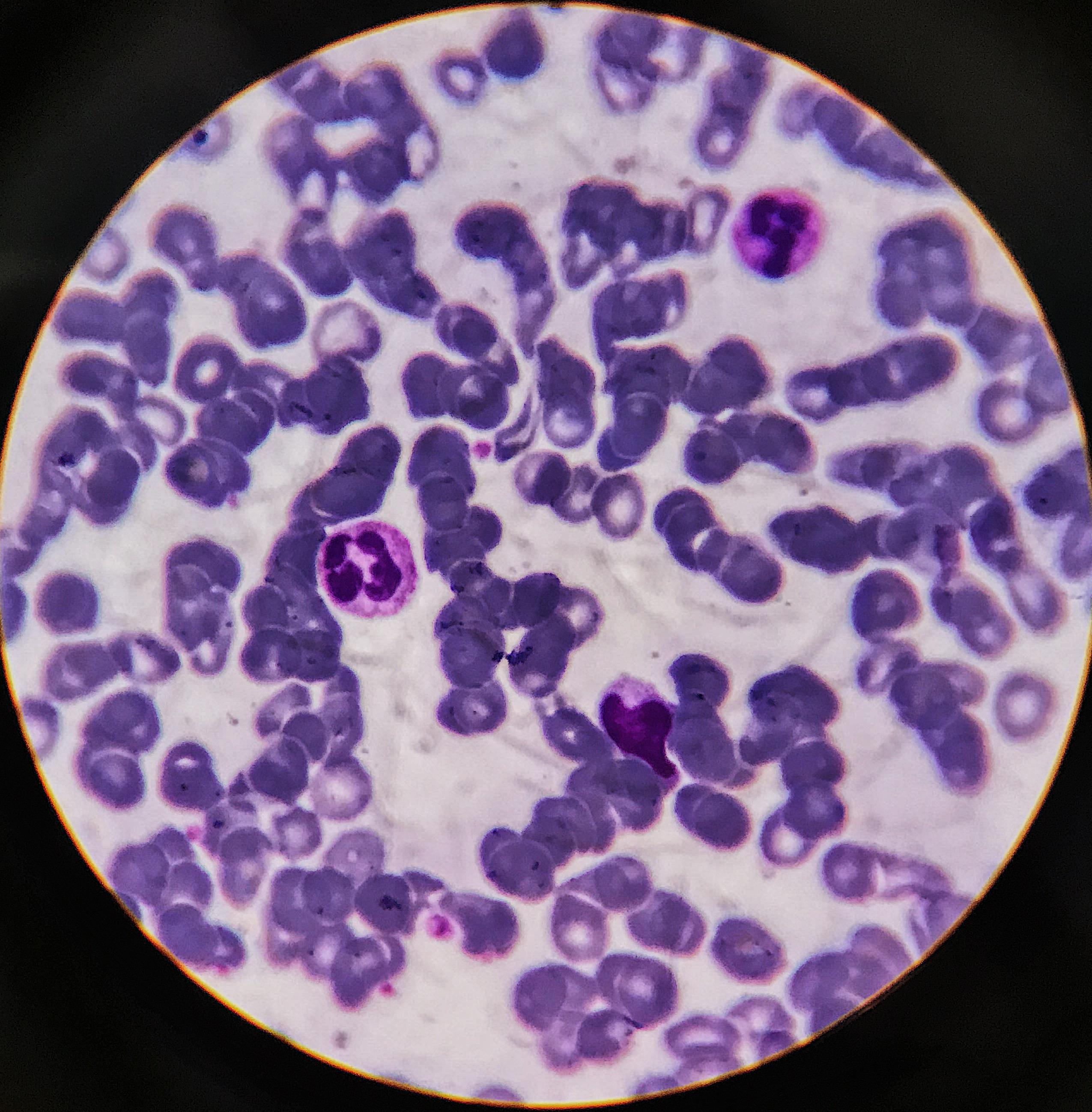 Myeloid leukemia treatment with tioridazina analogues