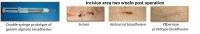 Hemostatic Soft Tissue Adhesives